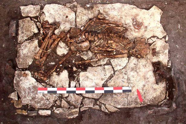 5000 godina stara lobanja sa tragovima operacije pronađena je u Rusiji